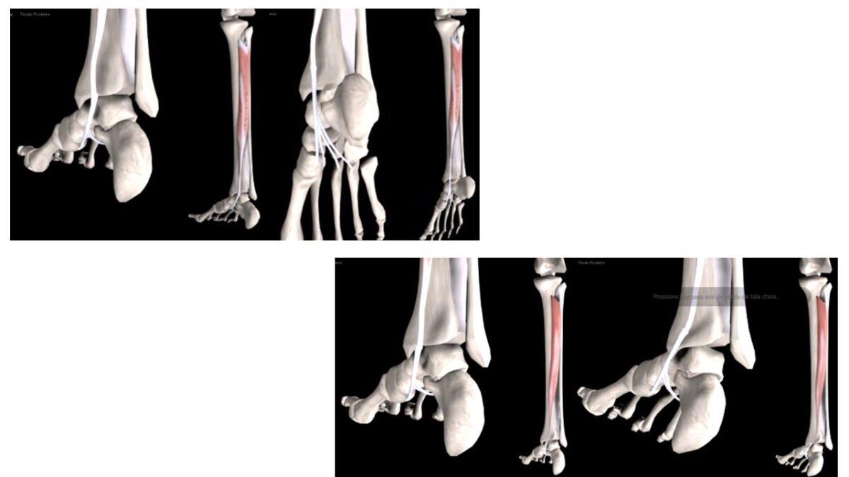 Treino_em_foco_anatomia_panturilhas_tríceps_surral