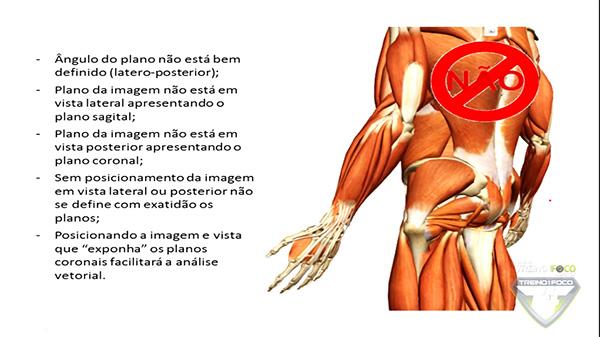 treino_em_foco_cinesiologia_glúteo_médio