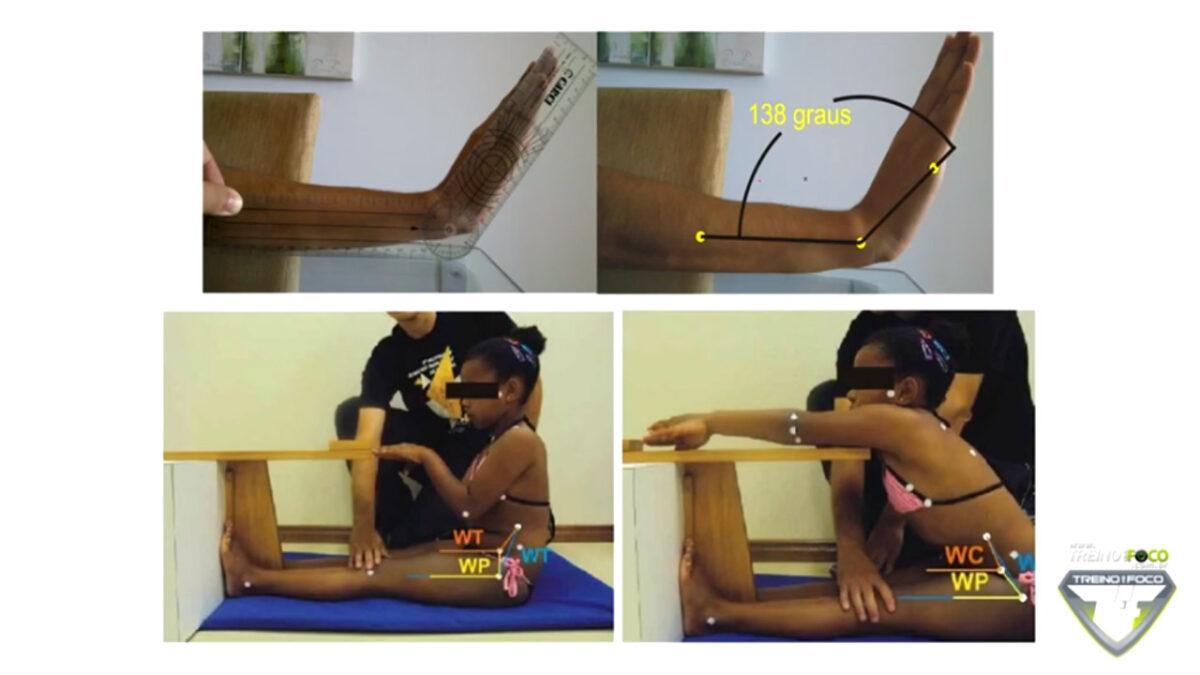 biofotogrametria_treino_em_foco_avaliação_postural_desvios_posturais