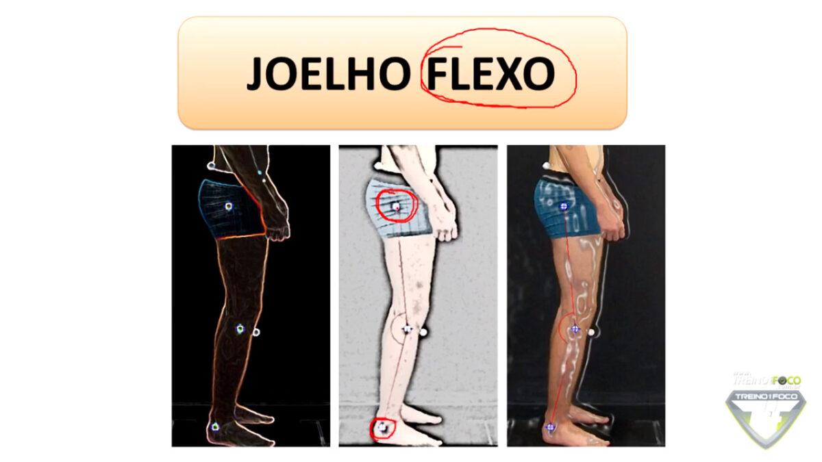 desvio_postural_joelho_flexo_treino_em_foco_joelho_flexo_biofotogrametria