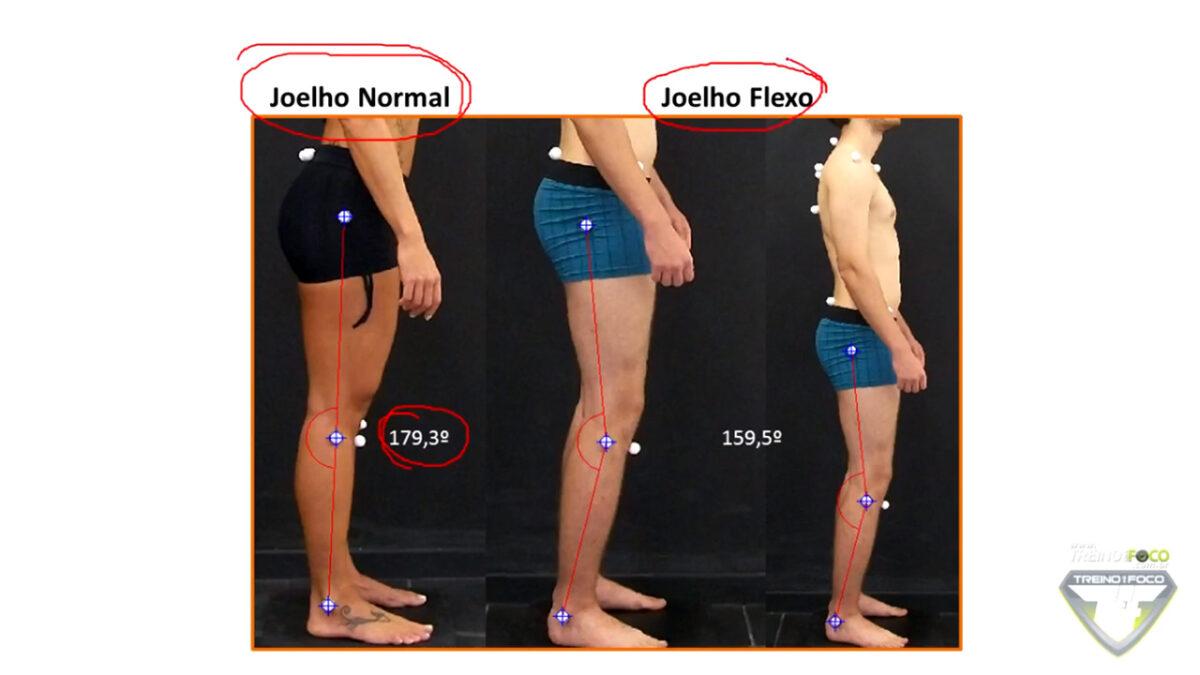 joelho_flexo_treino_em_foco_biofotogrametria_avaliação_postural