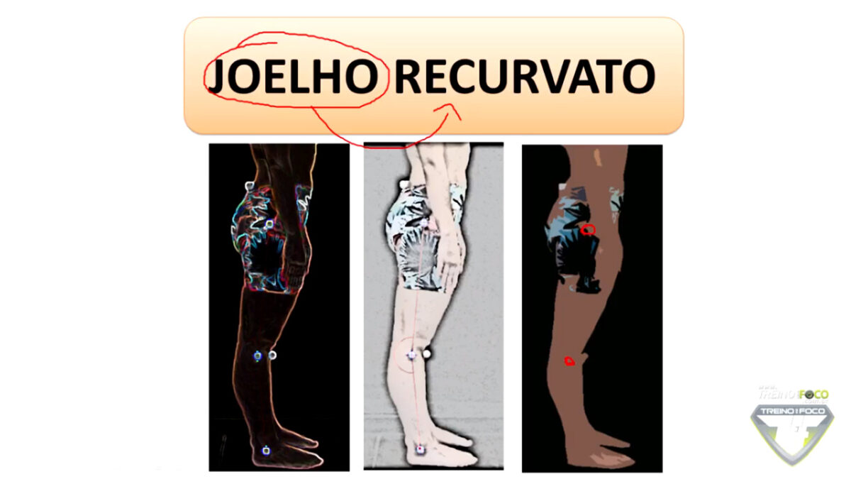 joelho_recurvato_treino_em_foco_avaliação_postural_biofotogrametria_