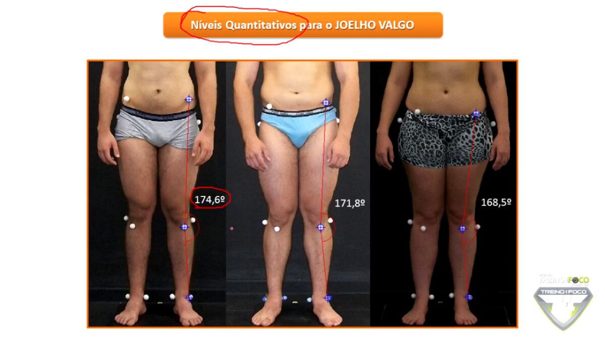 joelho_valgo_avaliação_postural_dores_no_joelho_treino_em_foco