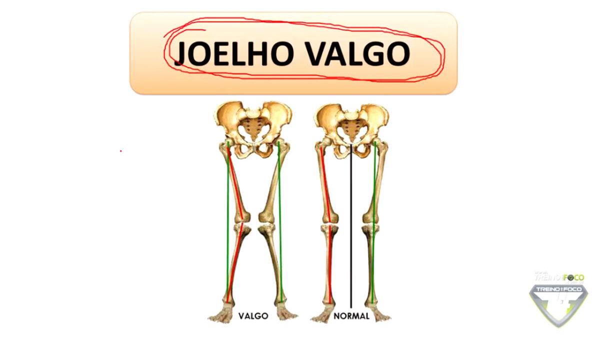 joelho_valgo_biofotogrametria_treino_em_foco_avaliação_postural