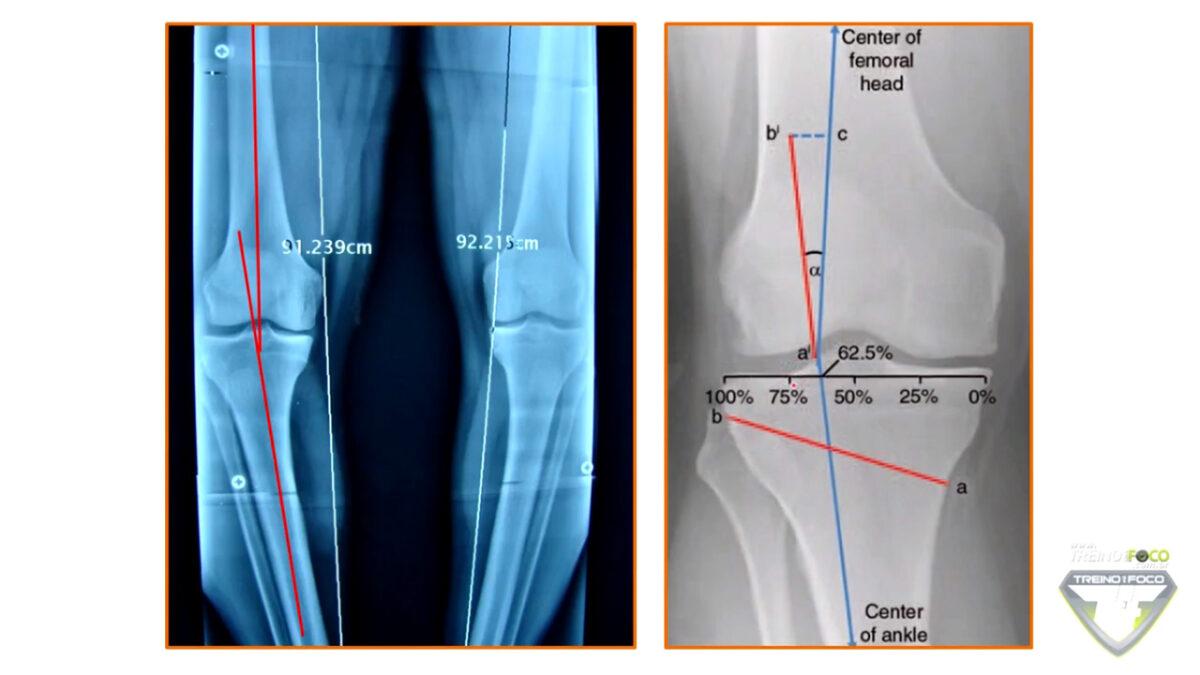 treino_em_foco_radiografia_joelho_varo_avaliação_postural_biofotogrametria