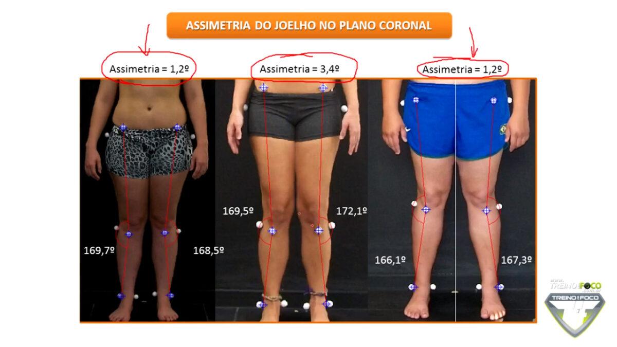 assimetria_de_joelho_desvios_posturais_treino_em_foco_biofotogrametria