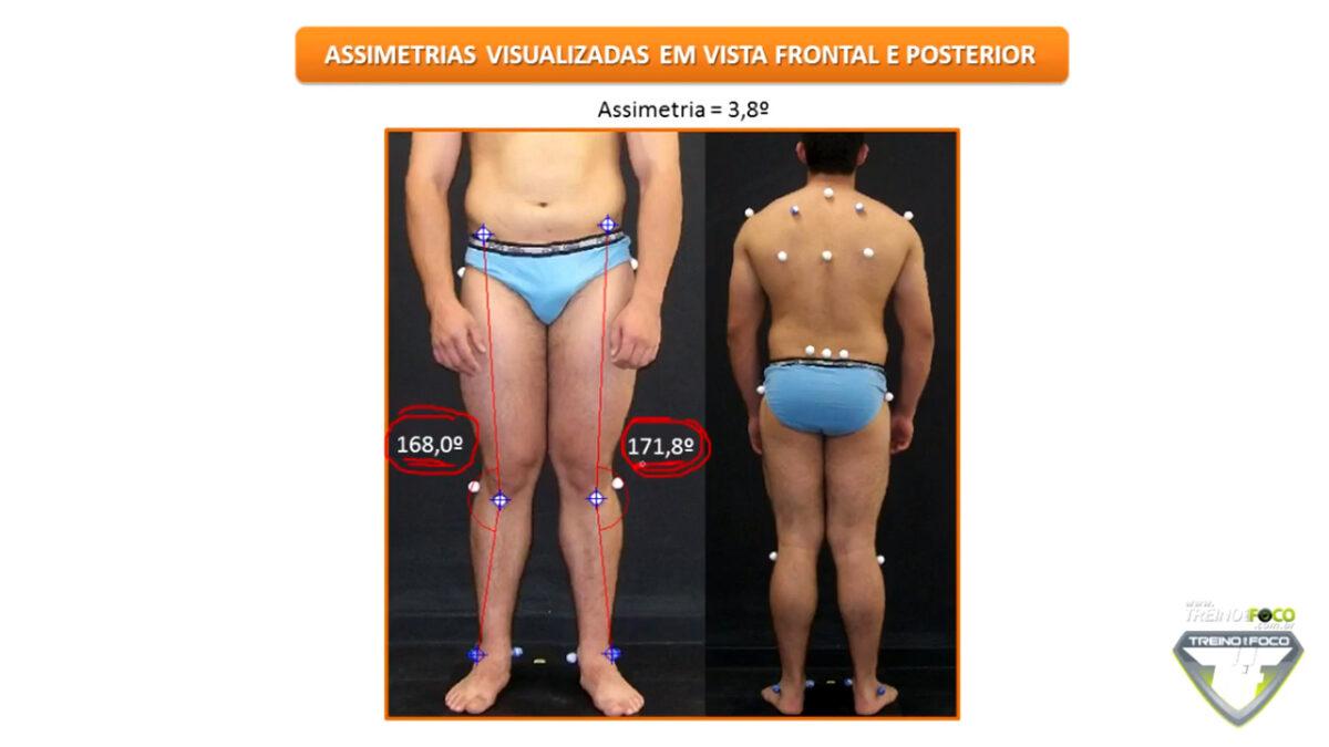 biofotogrametria_desvios_posturais_treino_em_foco_assimetria_de_joelho