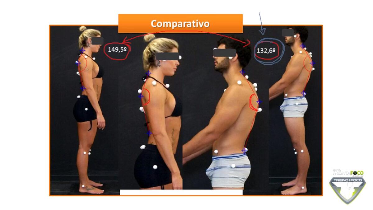 desvios_posturais_hipercifose_torácica_treino_em_foco_ biofotogrametria