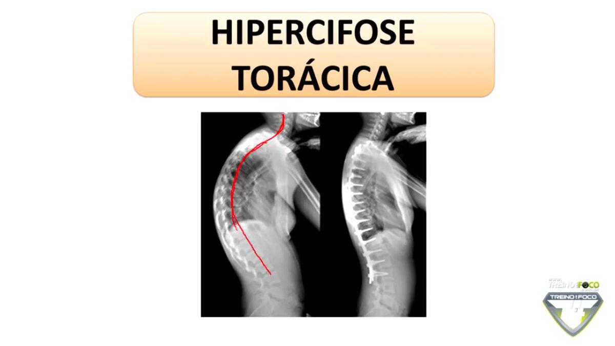 hipercifose_torácica_desvios_posturais_treino_em_Foco_biofotogrametria_