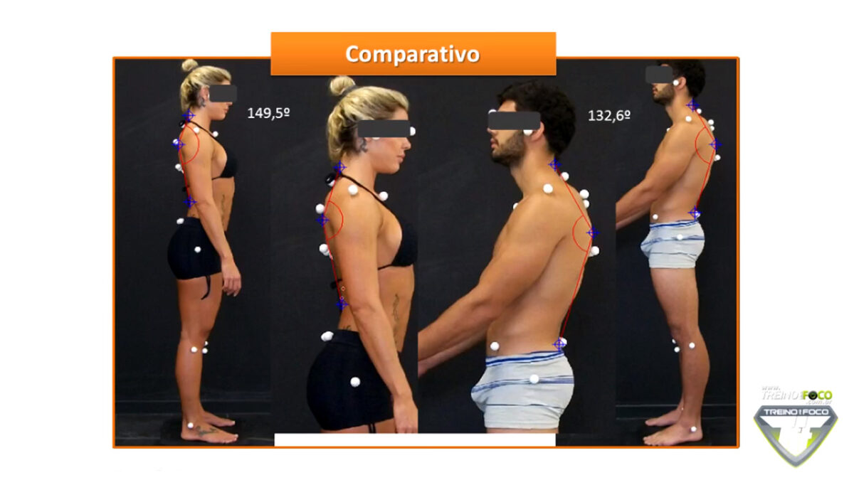 hipercifose_torácica_treino_em_foco_desvios_posturais_biofotogrametria