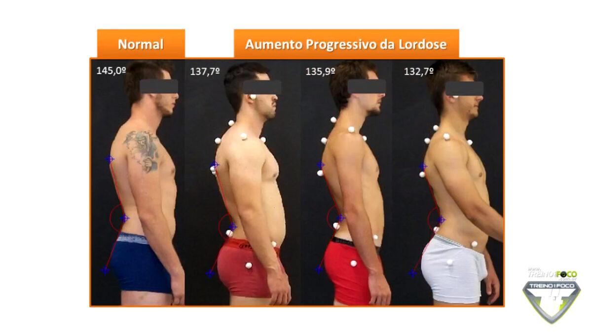 hiperlordose_lombar_treino_em_foco_biofotogrametria_desvio_posturais