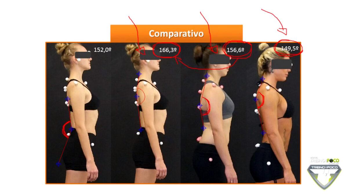 hipocifose_torácica_desvios_posturais_treino_em_foco_biofotogrametria
