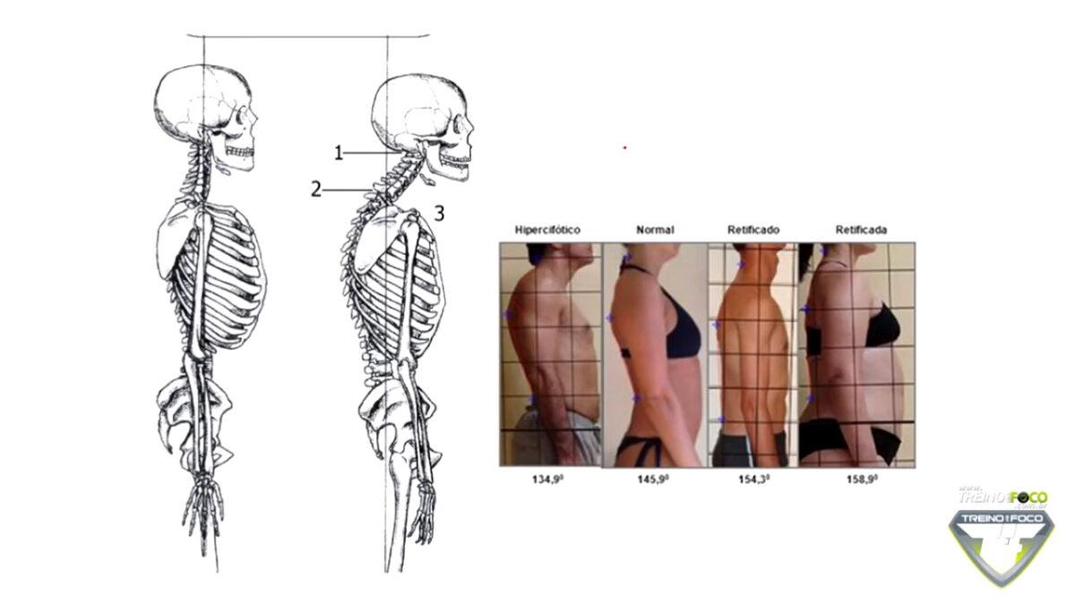 hipocifose_torácica_treino_em_foco_desvios_posturais_biofotogrametria