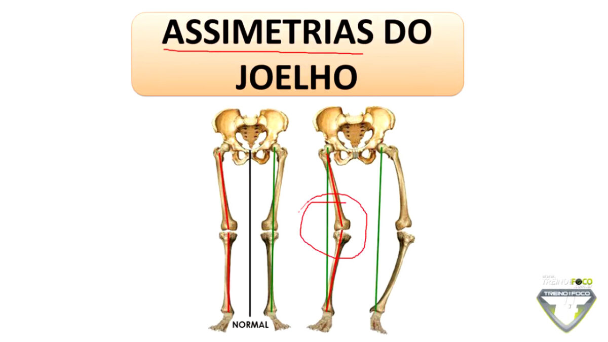 treino_em_foco_assimetria_de_joelho_joelho_varo_valgo_biofotogrametria