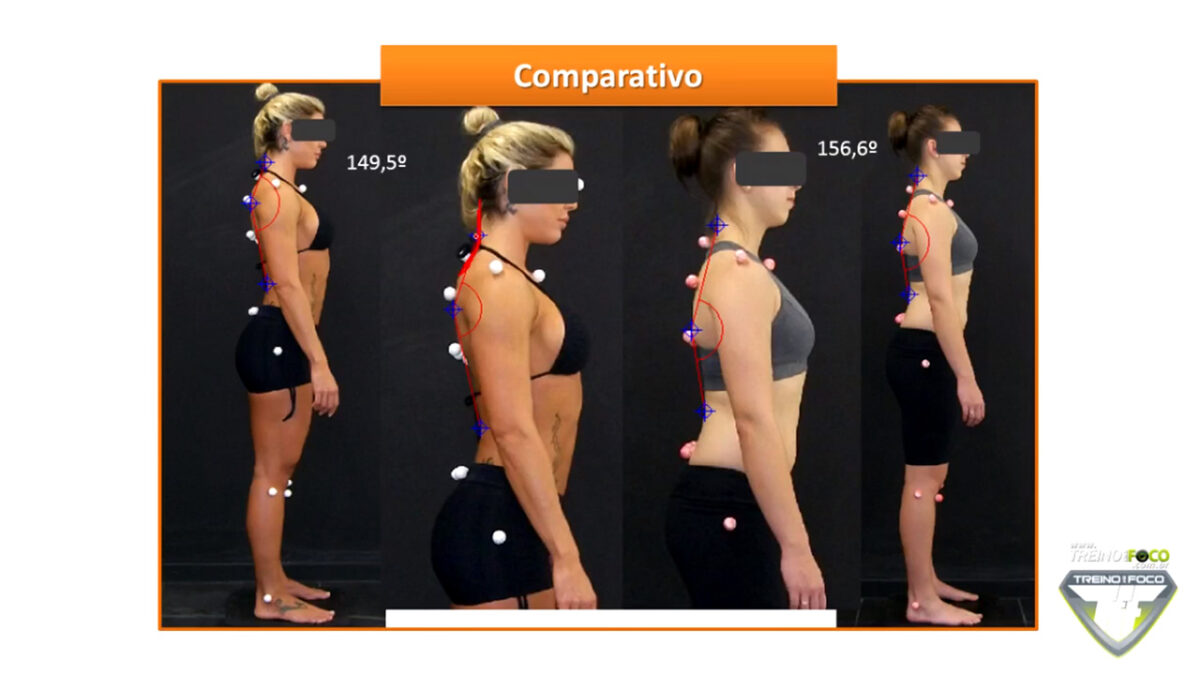 treino_em_foco_biofotogrametria_desvios_posturais_hipocifose_torácica