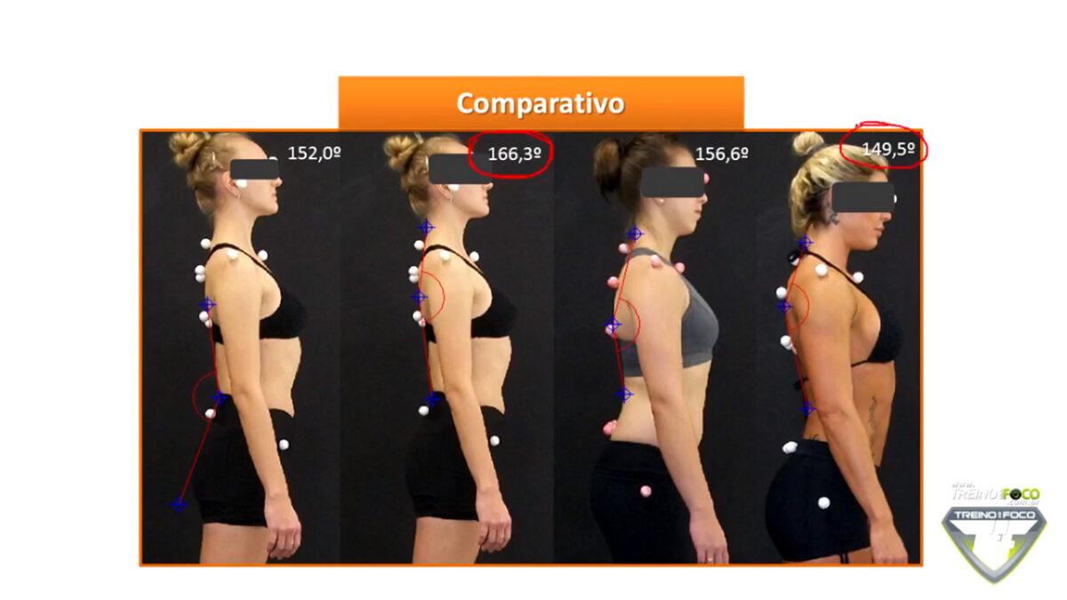 treino_em_foco_biofotogrametria_hipocifose_torácica_desvios_posturais_