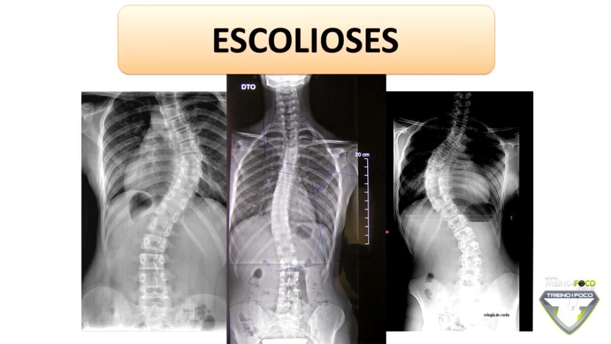 treino_em_foco_desvio_postural_escoliose_biofotogrametria_avaliação_postural