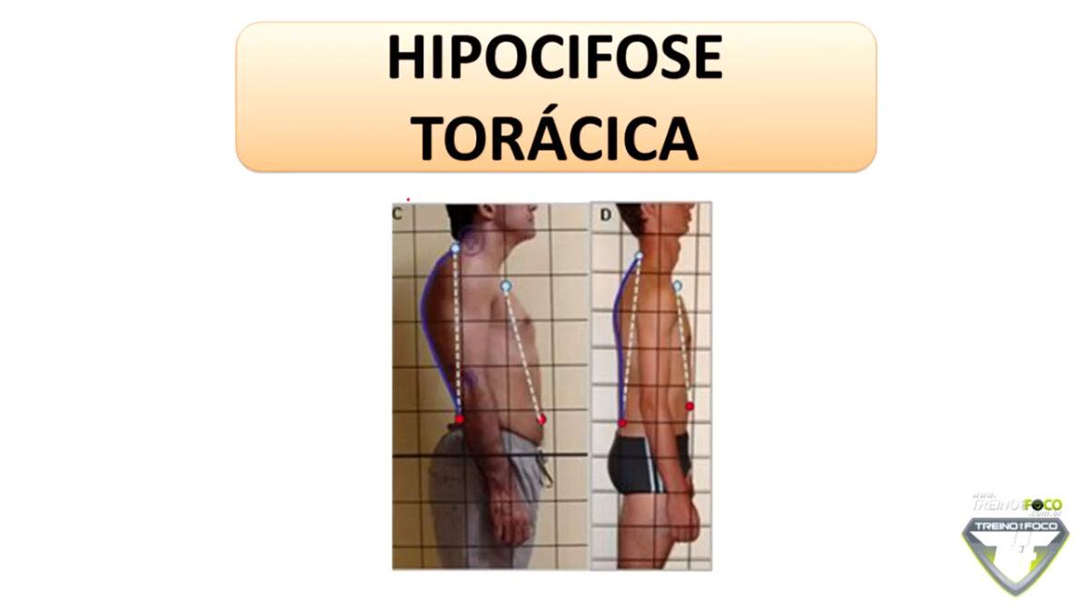 treino_em_foco_hipocifose_torácica_desvio_postural_biofotogrametria