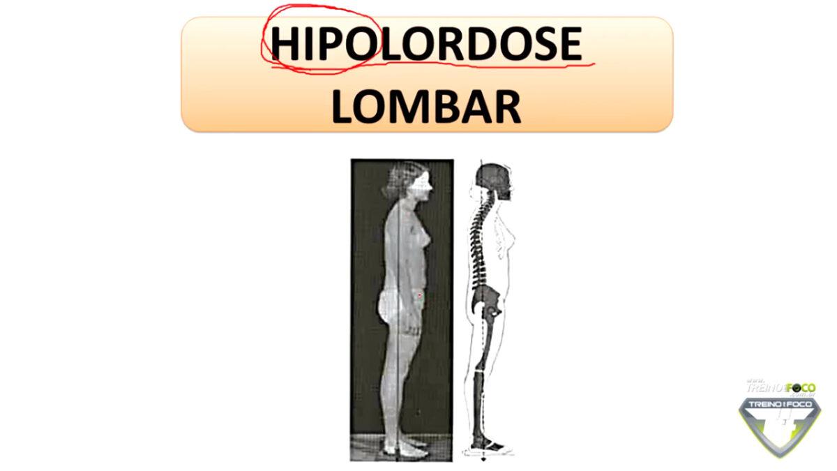 hipolordose_lombar_desvios_posturais_treino_em_foco_biofotogrametria