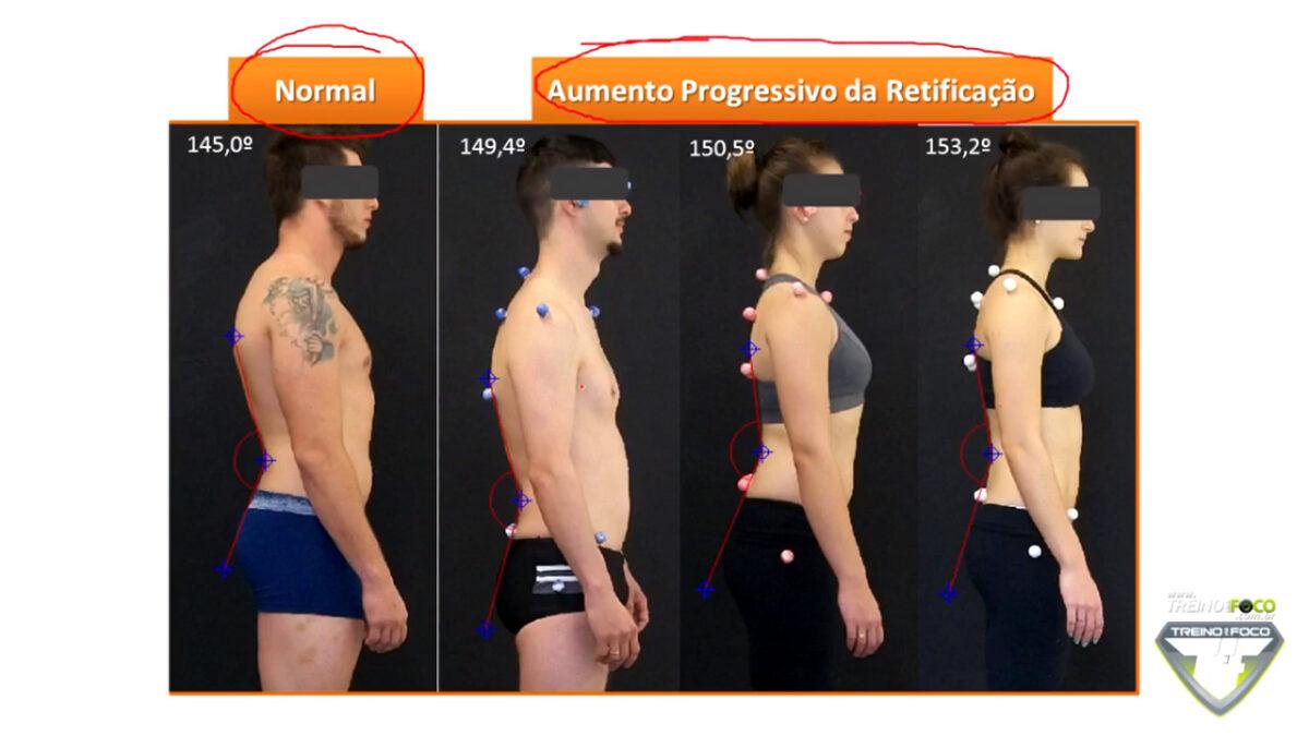 hipolordose_lombar_treino_em_foco_biofotogrametria_desvios_posturais_coluna_vertebral