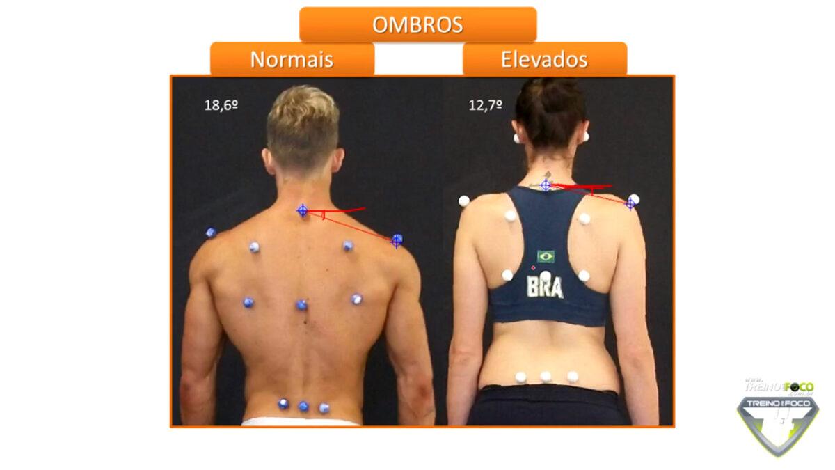 treino_em_foco_desvios_posturais_ombros _elevados_biofotogrametria