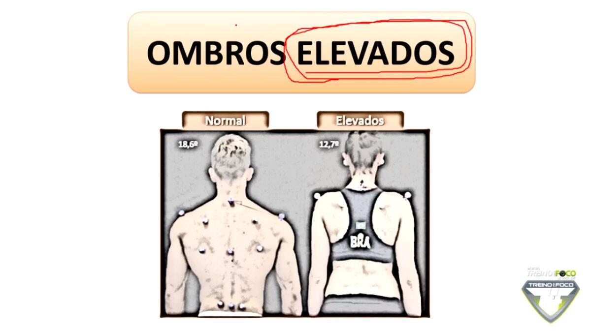 treino_em_foco_ombros_elevados_desvios_posturais_biofotogrametria
