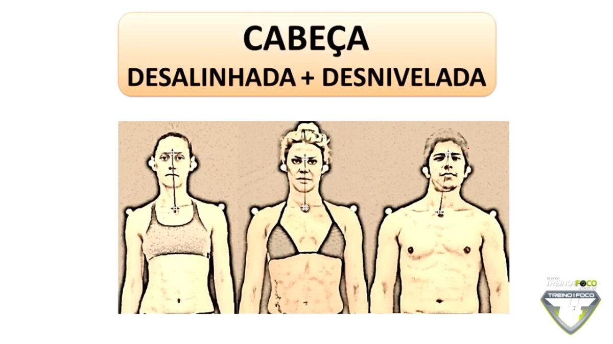 desalinahamento_desnivelamento_cabeça_treino_em_foco_biofotogrametria