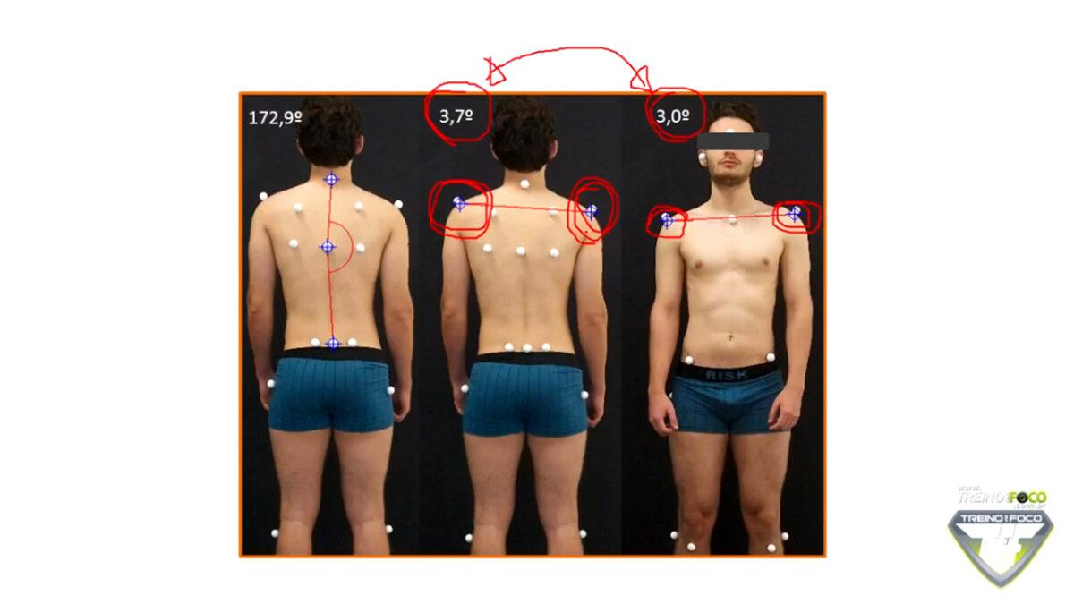 treino_em_foco_desnivelamento_dos_ombros_avaliação_postural_biofotogrametria_