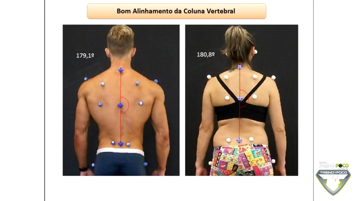 treino_em_foco_bom_alinhamento_postural_biofotogrametria