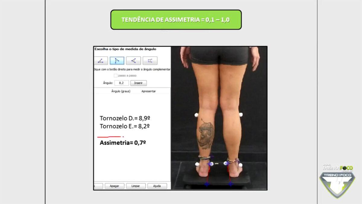 assimetria_tornozelos_referencias_biofotgrametricas