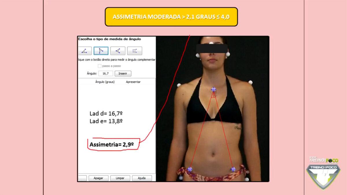 escoliose_referencias_biofotogrametricas_treino_em_foco