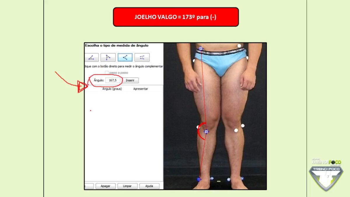 joelho_valgo_treino_em_foco_referencias_biofotogrametricas_clinicas