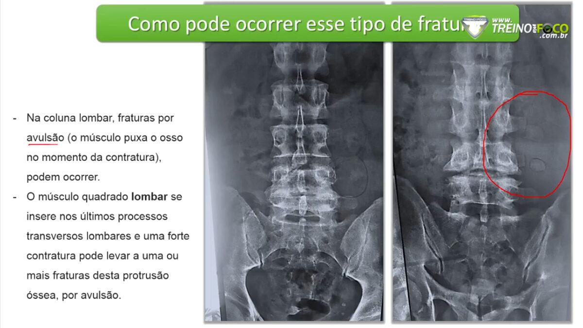 lesao_corpos_vertebrais_coluna_vertebral_treino_em_foco