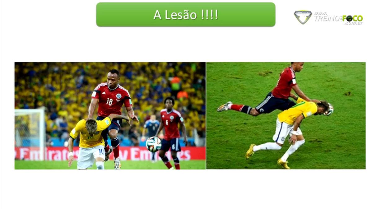 lesao_professor_joao_moura_coluna_vertebral