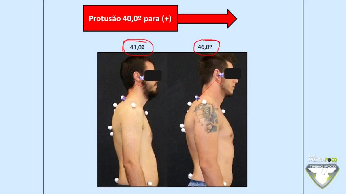protrusao_da_cabeca_treino_em_foco_referencias_biofotogrametricas