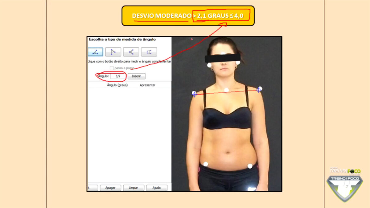 referencias_biofotogrametricas_treino_em_foco_segmento_ombro