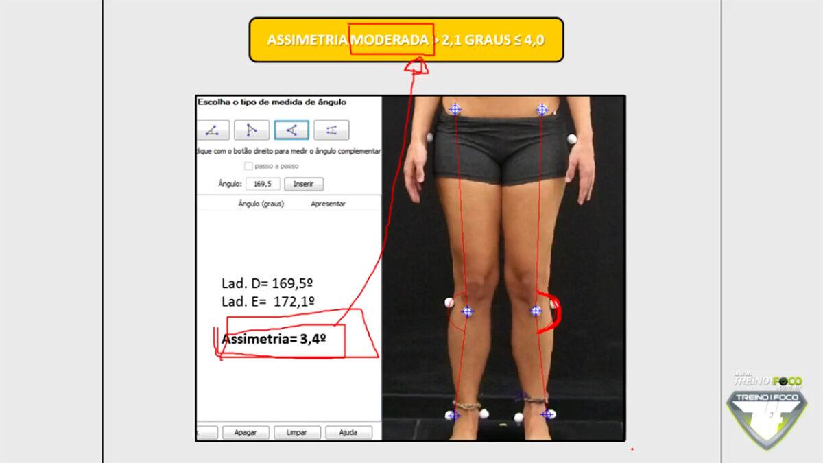 treino_em_foco_assimetria_joelhos_referencias_clinicas