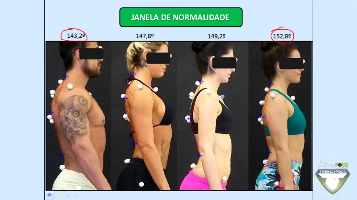 treino_em_foco_biofotogrametria_cifose_toracica