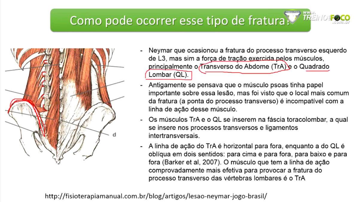treino_em_foco_coluna_vertebral_musculo_quadrado_lombar