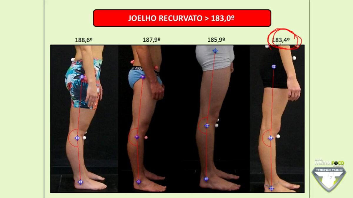 treino_em_foco_joelho_recurvato_referencias_biofotogrametricas