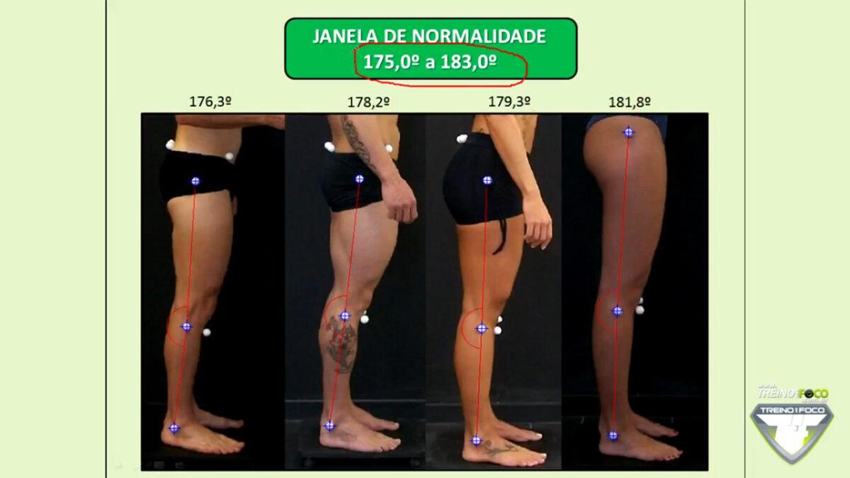 treino_em_foco_referencias_biofotogrametricas_joelho_recurvato