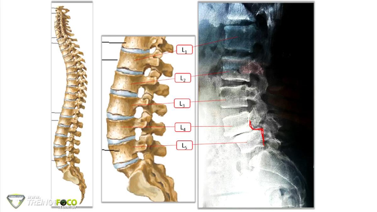 espondilólise_espondilolistese_treino_em_foco_coluna_vertebral