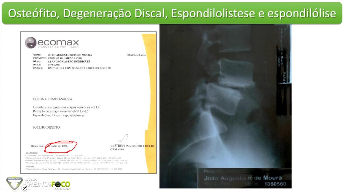 osteófilos_treino_em_foco_patologia_coluna_vertebral
