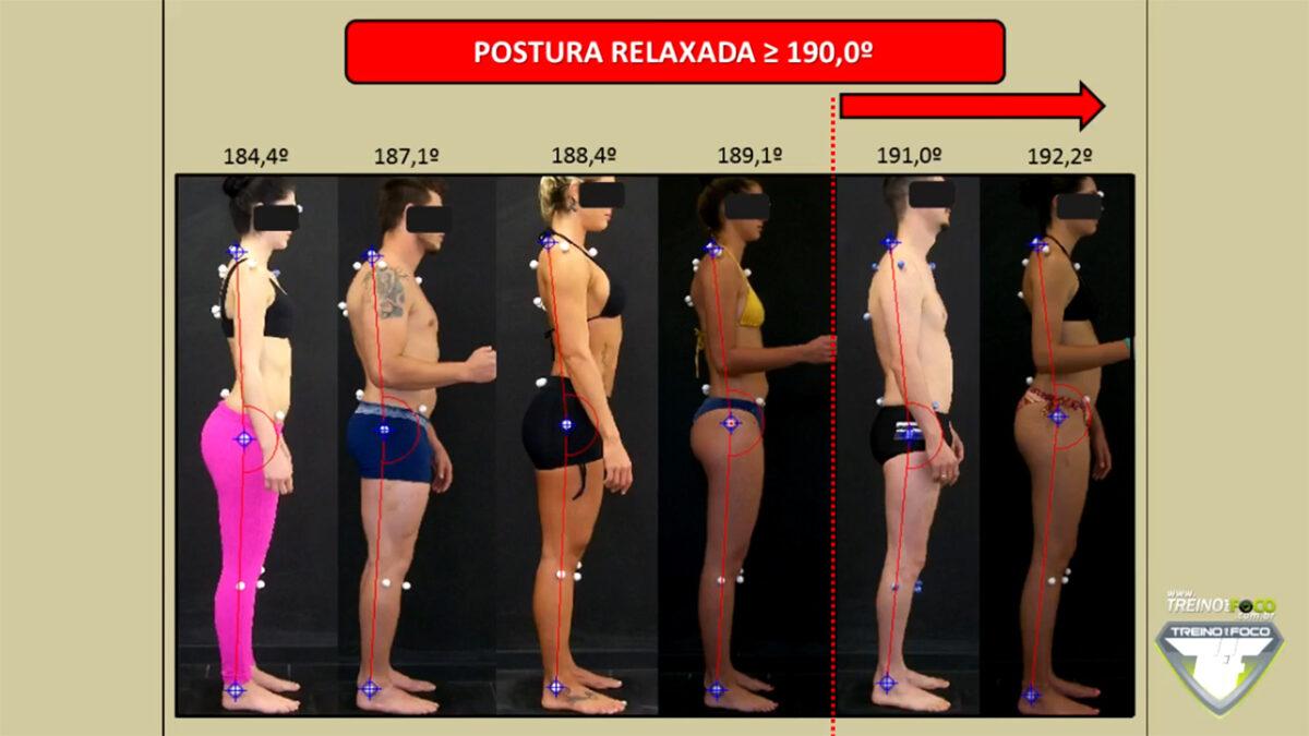 postura_desleixada_relaxada_treino_em_foco_referencias_biofotogrametricas