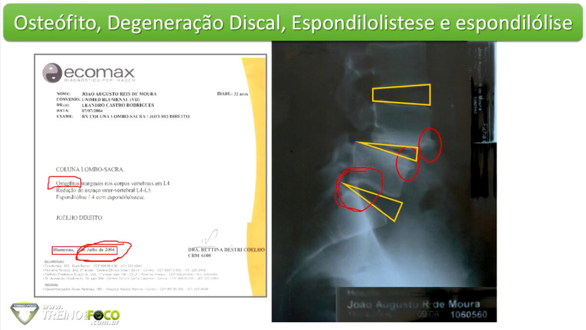 treino_em_foco_patologia_coluna_vertebral_espondilolistese_espondilólise
