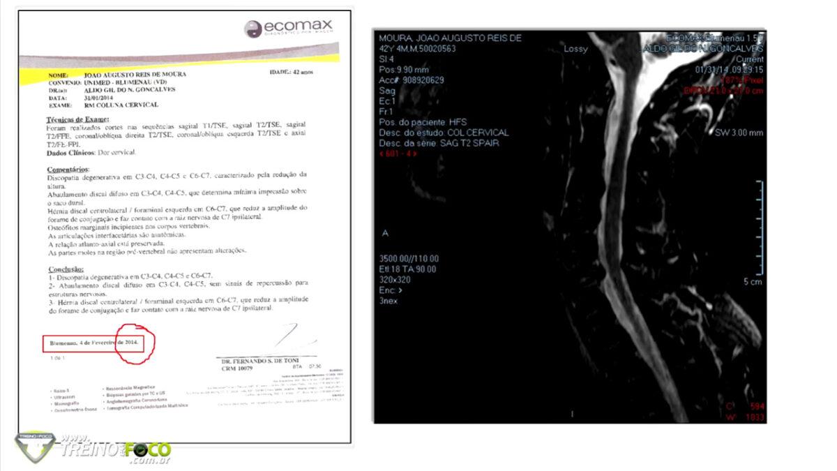 treino_em_foco_patologia_coluna_vertebral_site