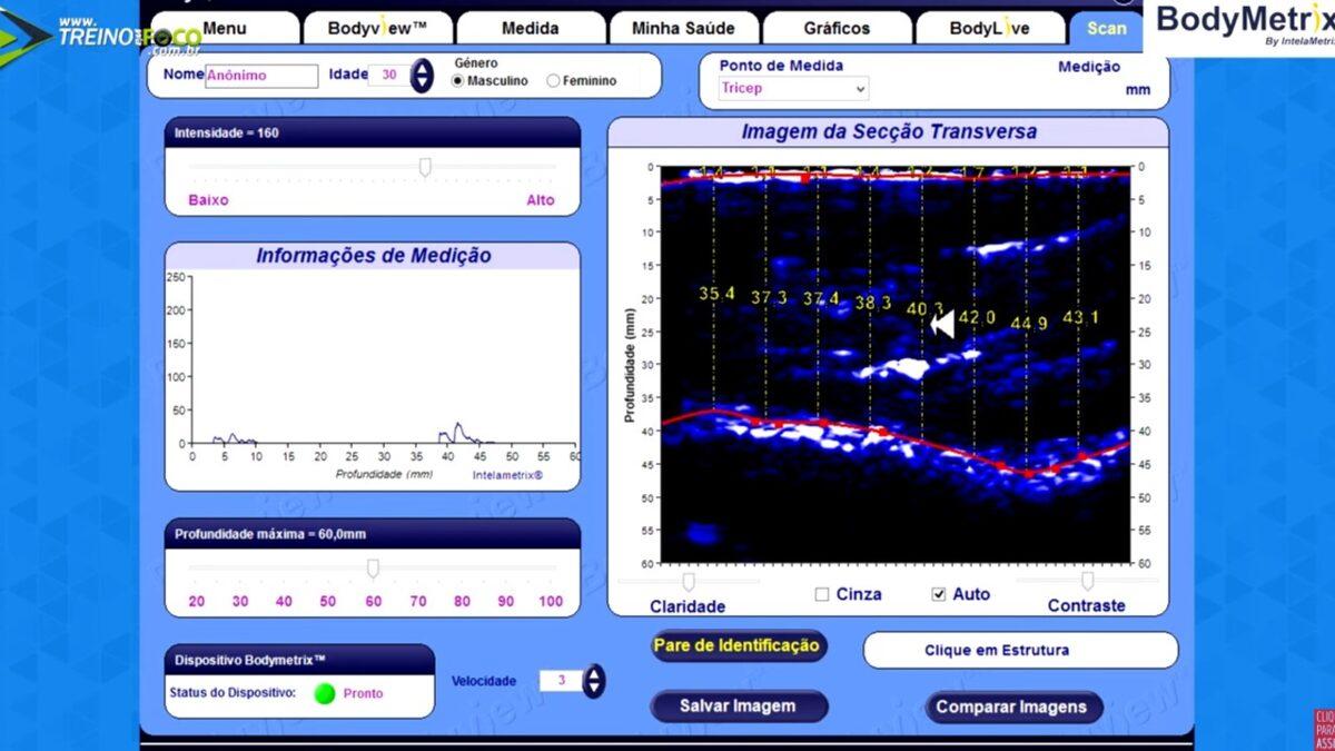 Treino_em_foco_ultrassom_avaliação_morfológica