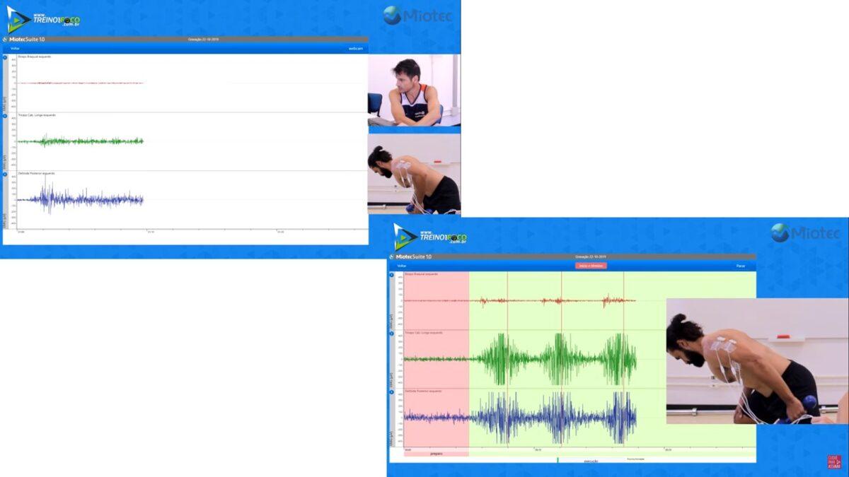 treino_em_foco_chute_de_triceps_eletromiografia_análise