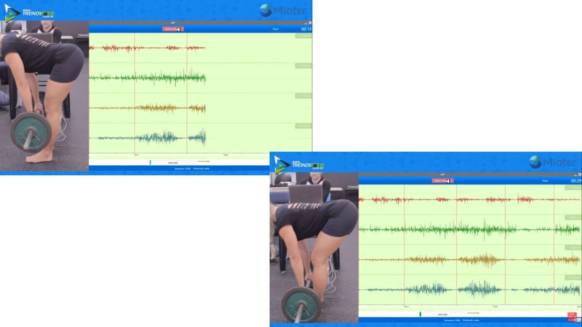 Treino_em_foco_stiff_variações_atividade_eletromiográfica